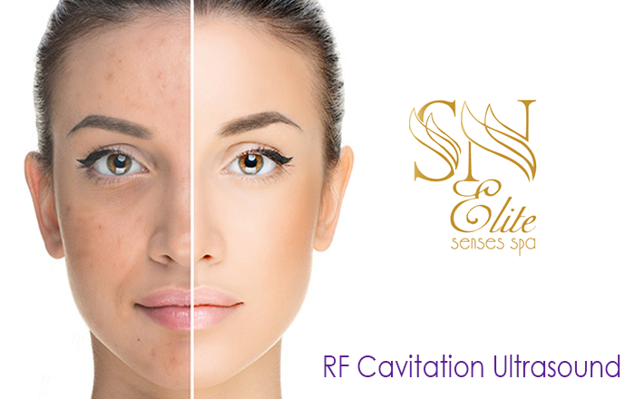 RF-Cavitation-Ultrasound