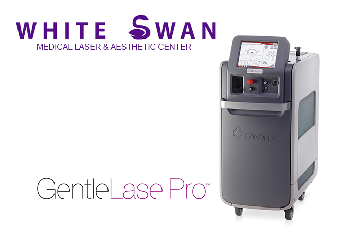 LASER-HAIR-REMOVAL-SWAND